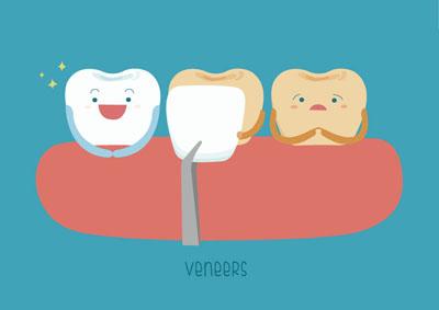 How Long Do Veneers Last On Front Teeth?