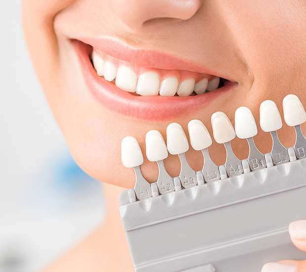 Buford Dental Veneers and Dental Laminates